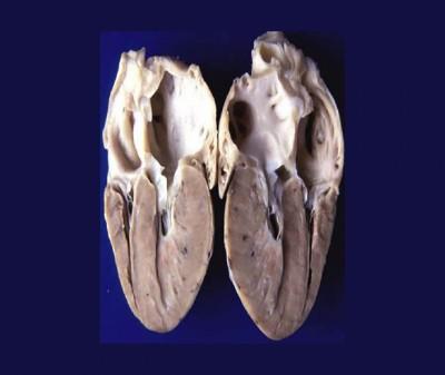 HCM reperto anatomopatologico 1